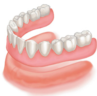 Full Lower Denture