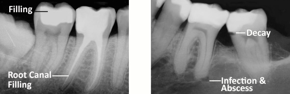 Root canal 3