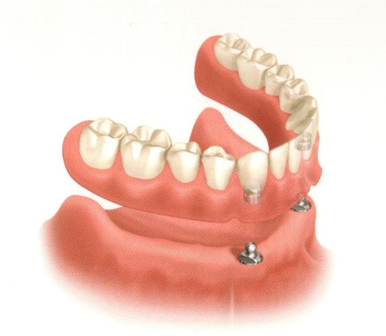implant full lower denture