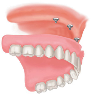 implant full upper denture