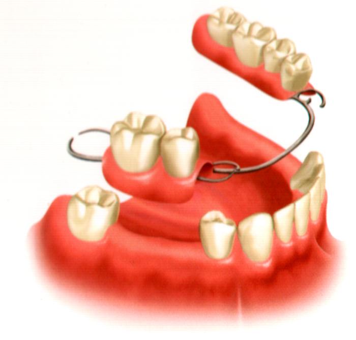 partial denture 1